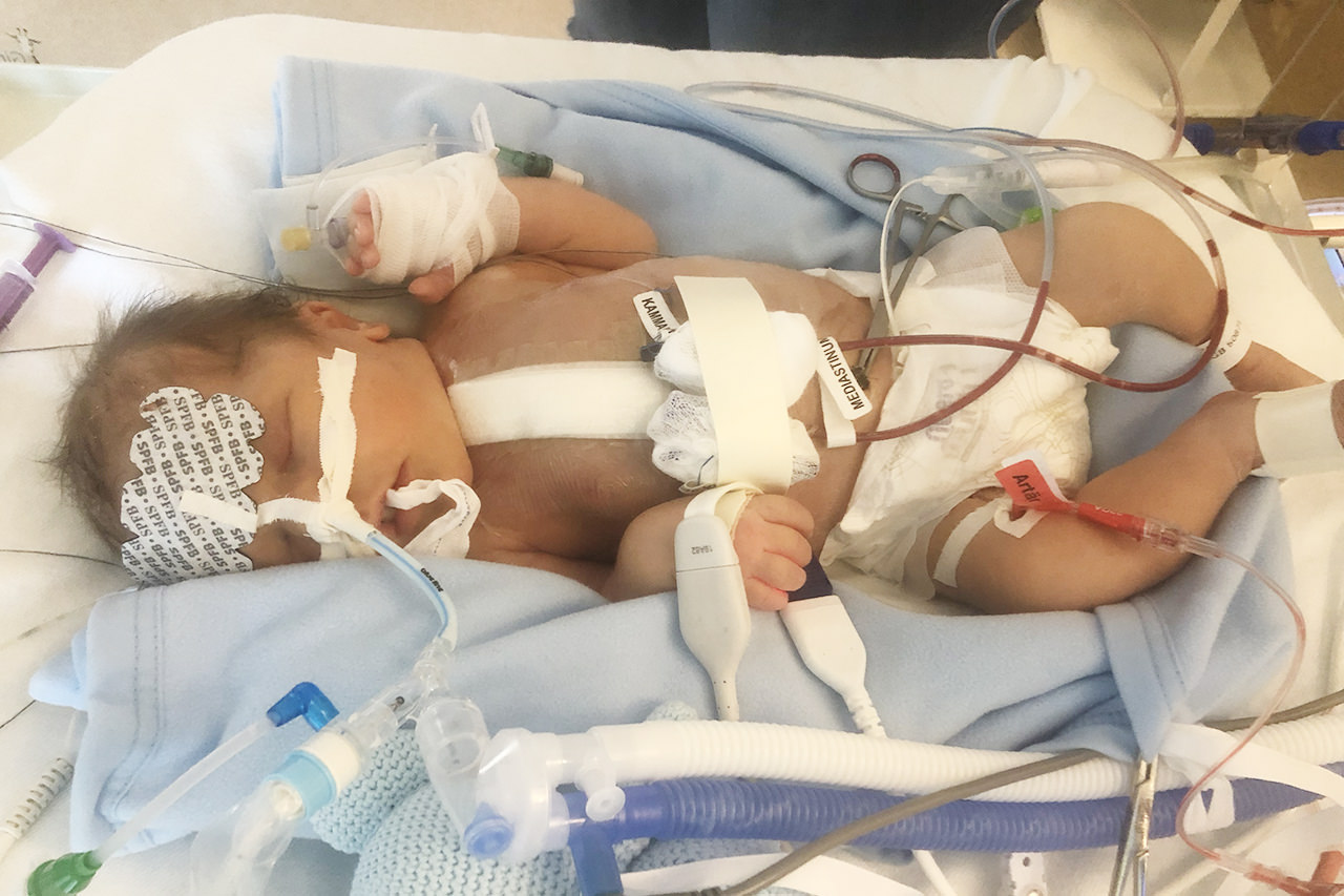 född med hjärtfel nyfödd bebis födas med hjärtfel